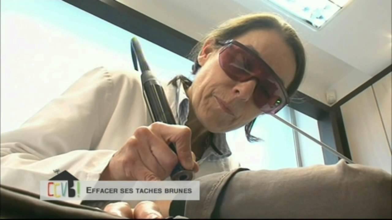 Effacer Les Taches Brunes Ou De Soleil Au Laser Au