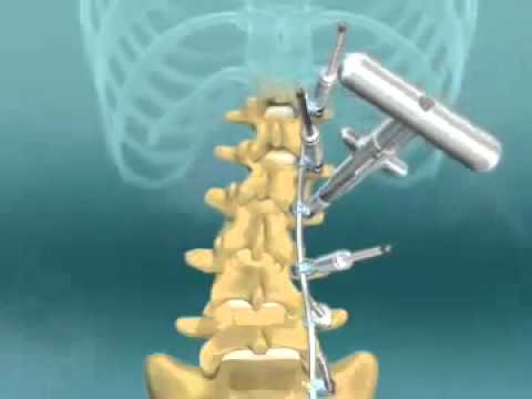 Scoliosis Spinal Fusion Animation - YouTube