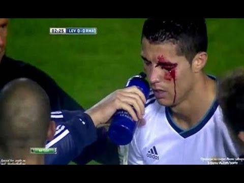 Real Madrid vs copenhagen 4 0 & Pepe horror eyes injury vs copenhagen 2013
