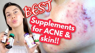 THE SUPPLEMENTS I TAKE FOR MY ACNE AND TO ACHIEVE GLOWY, HEALTHY SKIN!! || best supplements for skin