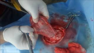 sahada buzağı fıtık operasyonu (calf hernia operation in the field)