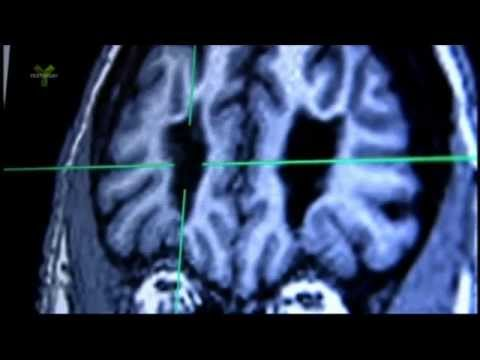 Transorbit lobotomy and MRI examination of living lobotomized patients brain