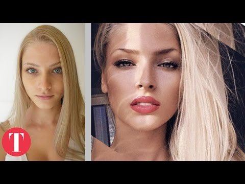 10 Hot Instagram Stars Before Plastic Surgery