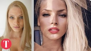 10 Hot Instagram Stars Before Plastic Surgery