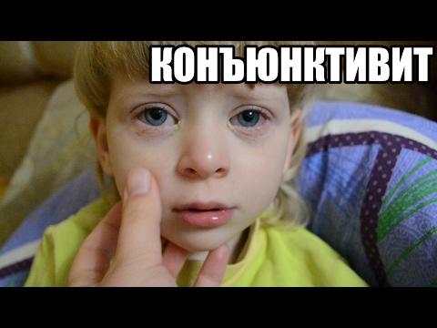 КОНЪЮНКТИВИТ У РЕБЕНКА? Как и чем промывать глаза у детей при конъюнктивите. Просто и Эффективно.