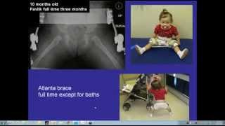 Webinar: Evaluation and Indications for Treatment of Hip Dysplasia