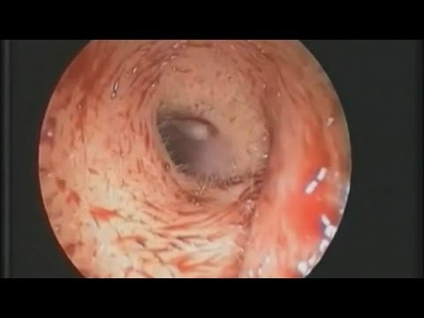 Woman Discovers Maggot Living In Her Ear video