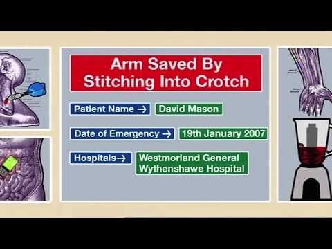 Arm Saved by Stitching Into Crotch   Part 1