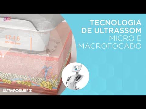 Ultraformer 3 - Aplicações e Depoimentos