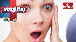 Solution For Pimples and Skin Problems By ANOO'S Director Anuradha - Jeevana Rekha - hmtv. - netivaarthalu.com