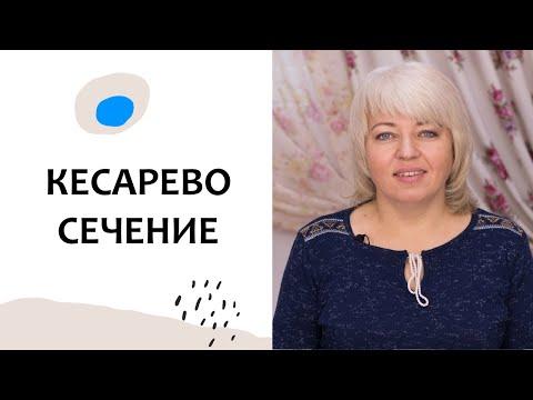 Выпуск 77. КЕСАРЕВО СЕЧЕНИЕ. Роды без страха