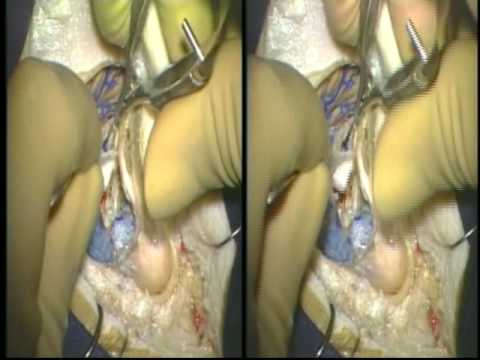 3D Medical-Surgical + Animation Sampler SxS Video