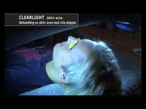 Aktiv acne behandling med blått ljus Clearlight