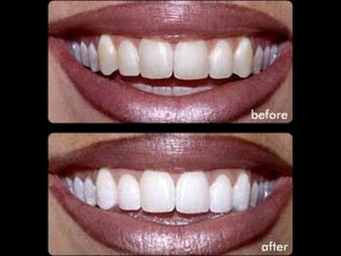 How to AT HOME whiten your teeth