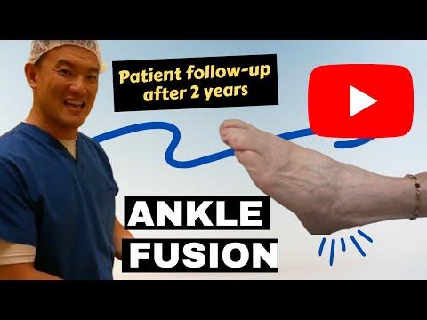 Ankle fusion ROM.AVI