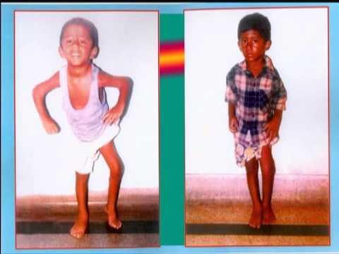 polio cases video,premahospital,vizag (India) 0891-2526791,92,