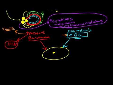 Pathophysiology of Diabetic Nephropathy thumbnail