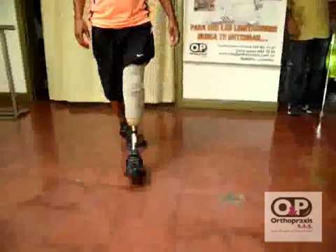 Protesis por Debajo de Rodilla Liner de silicona con valvula y pie multiaxial