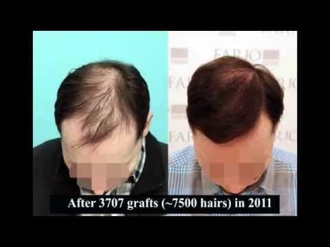 Stuart Adams Hair Transplant Surgery 3707 grafts