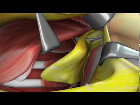 3D Medical Animation of a Mastectomy