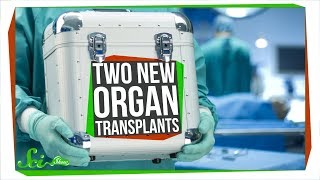Two Unbelievable New Transplants That Actually Worked