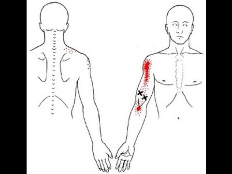 Between Shoulder And Elbow Arm Shoulder And Inner Elbow