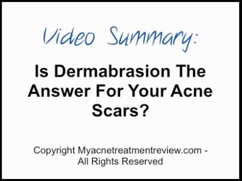 Is Dermabrasion The Answer For Your Acne Scars?