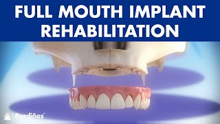 Rehabilitation of the maxilla with 6 dental implants ©