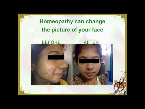 Acne | Acne Treatment | Dr. Mahavrat Patel