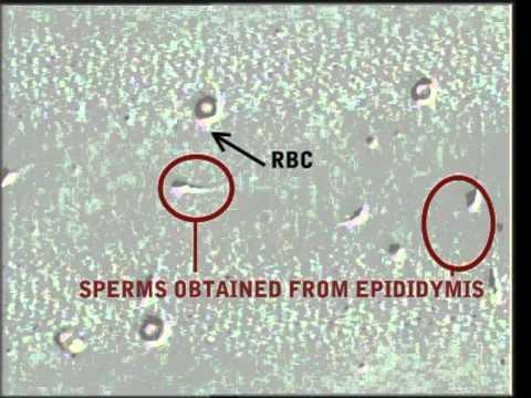 Hope for Azoospermic men: Percutaneous epididymal sperm aspiration