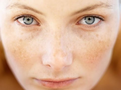 How to treat Pigmented Skin Naturally!