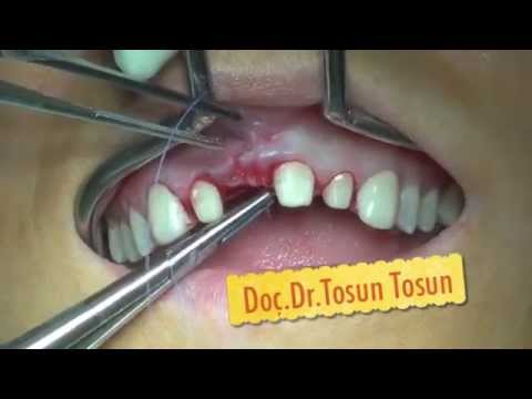 central incisor replacement by dental implant