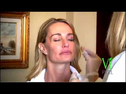 VI Medical Peel - in Phoenix | Scottsdale Arizona