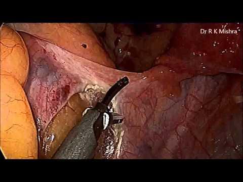 forberedelse til analsex peter betydning
