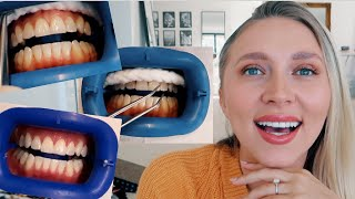 IS IT WORTH IT? Professional teeth whitening! BEFORE & AFTER!