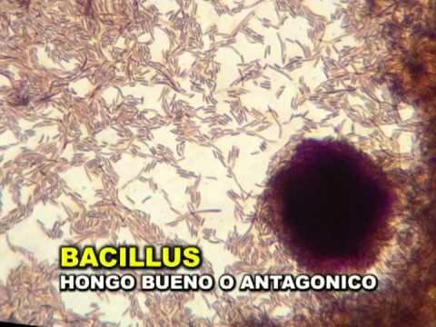 TRAMPA PARA MICROORGANISMOS y ANALISIS DE SUELOS