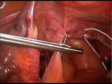 struds English uterin prolaps