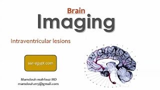 Imaging of Intraventricular lesions of the brain - Prof Dr. Mamdouh Mahfouz (In Arabic)