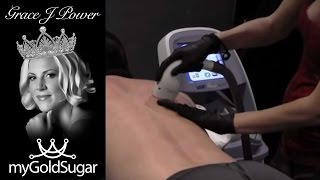 Back Shave and Laser Hair Removal with Lumenis LightSheer Duet High Speed - Vadazzle.com
