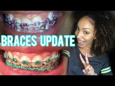 Braces UPDATE 3 Month Progress | VLOG 2