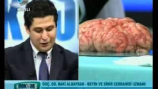 Hangi Tip Baş Ağrısı Tehlikelidir? Beyin Tümörü Nasıl Tespit Ediliyor? - 2