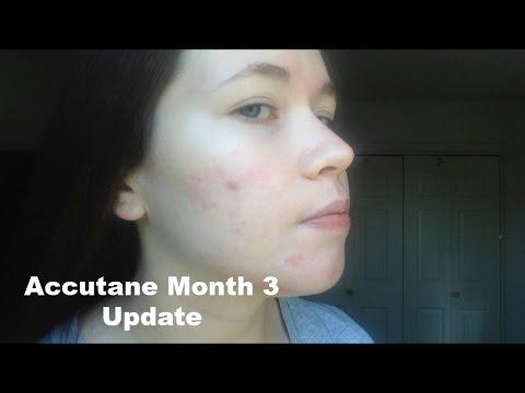 Accutane Month 3