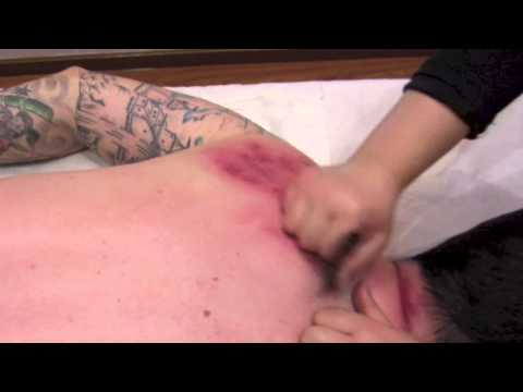 Traditional Chinese Massage: Gua Sha Part 1
