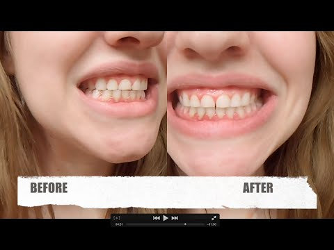 Dr Song Teeth Whitening Review (Before and After 1 use)