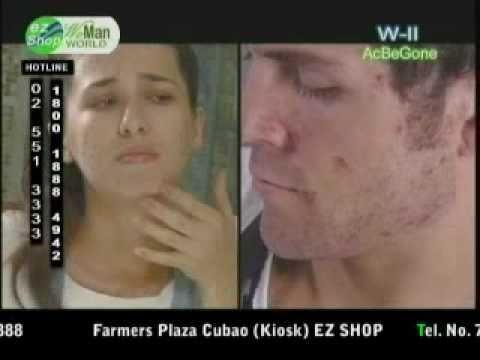 AcBeGone Anti-Acne Treatment Solution (www.myezshopmall.com)