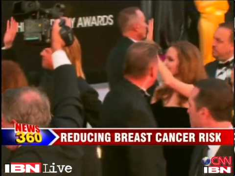 Angelina Jolie underwent double mastectomy to reduce breast cancer risk