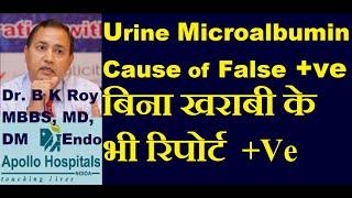 Urine Micro-albuminuria in Diabetes False Positive | Causes of False Positive Microalbumin  test