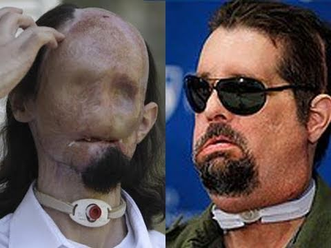 Full Face Transplant (Graphic)