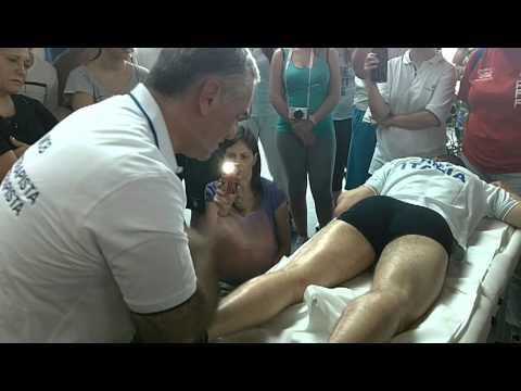Sinostoz reparto cervicale