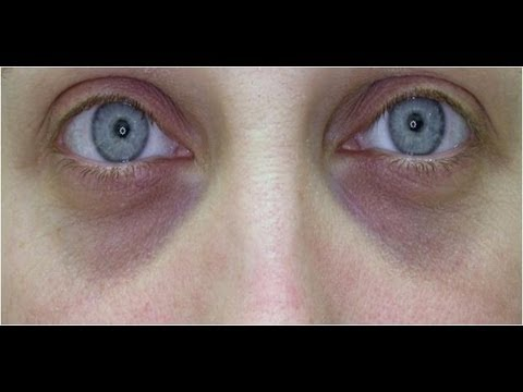 DermTV - Fillers for Under Eye Dark Circles [DermTV.com #414]